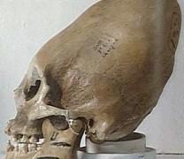 Cráneos inexplicables