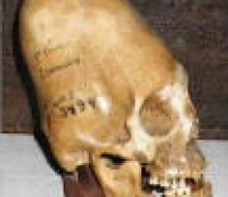 Fotos de cráneos ConeHead