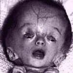 Caso patológico: hidrocefalia