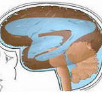 Esquema de hidrocefalia